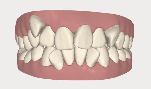 デコボコ歯並び