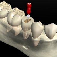 歯の神経の治療